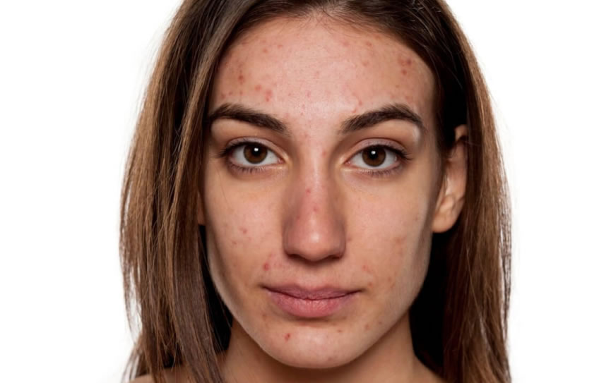 Causas de acné en el adulto y ayudas de medicina natural