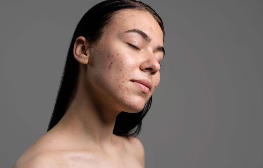 ¿Qué es el acné? y su manejo con Medicina Natural